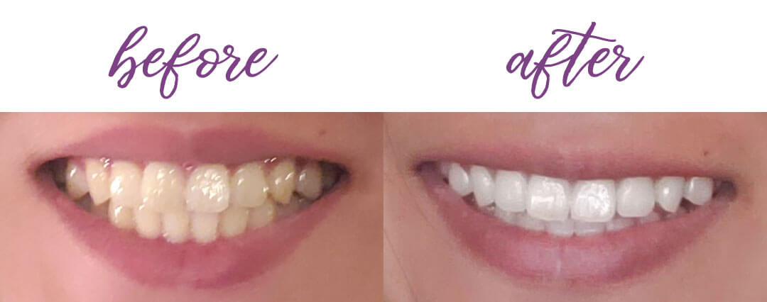 My smile before and after using the Smile Brilliant whitening kit